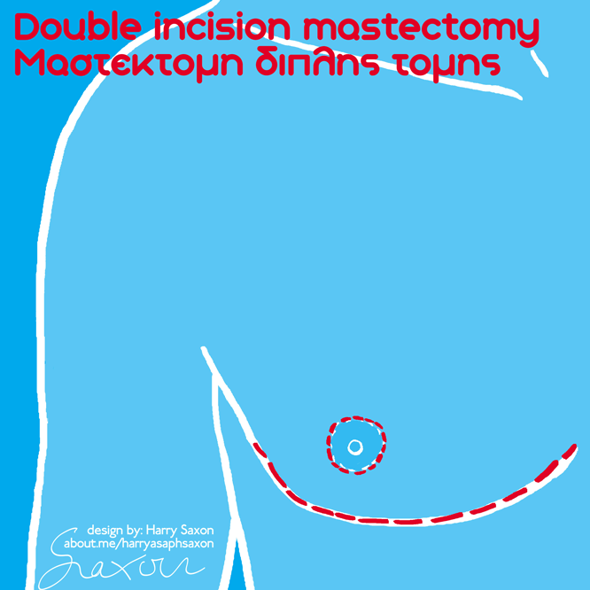 01 DI mastectomy