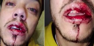 Καληνύχτισε τον σύντροφό του με ένα φιλί και συμμορία του επιτέθηκε