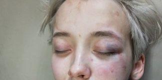 Ομάδα επτά ανδρών επιτέθηκε σε έφηβη λόγω ομοφοβίας στη Ρωσία