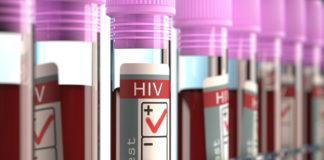 στέλεχος του HIV ανθεκτικό
